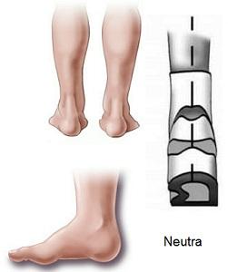 Pisada Neutra